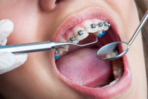 Hi-Tech Dentistry